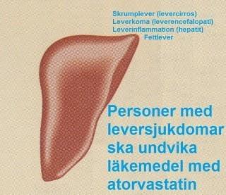 leversjukdom
